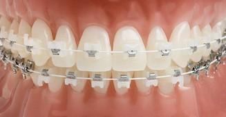 clear-ceramic-braces.jpg
