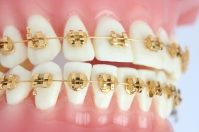 gold_braces.jpg